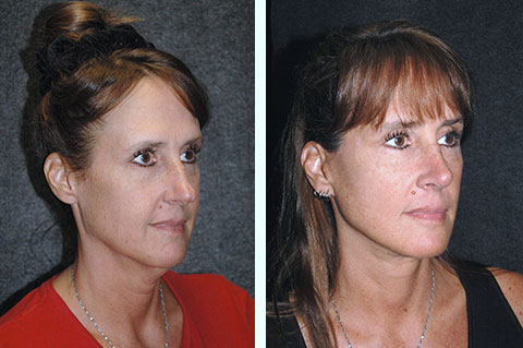 best facelift surgeon nyc for mini facelift at 40