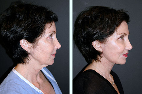 best nyc deep plane facelift surgeon