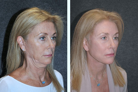 best smas facelift surgeon
