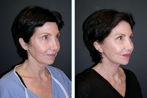 deep plane facelift nyc
