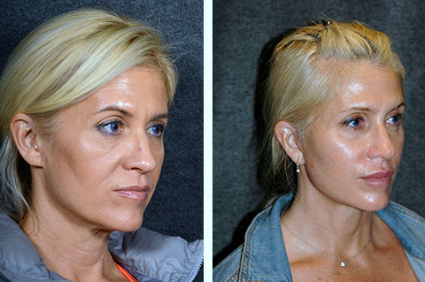 facelift at 40 before and after