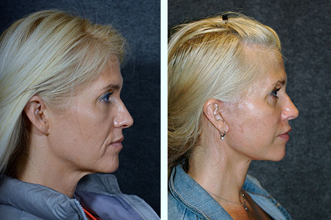 facelift at 40 years old before and after