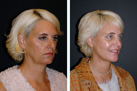 facelift surgery in forties
