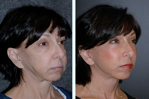 facial fat graft correction fat transfer reversal