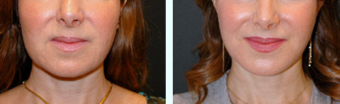facial fat graft removal before and after