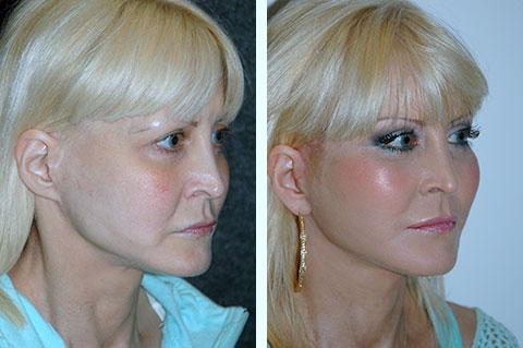 fat fat transfer correction before and after