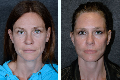 forty year old facelift before and after