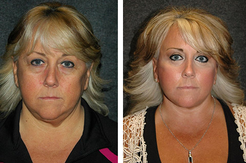 lower facelift before and after and eyelid lift