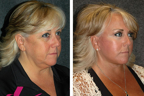 lower facelift before and after with necklift