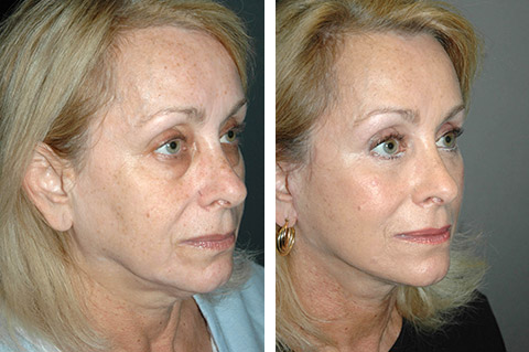 lower facelift before and after