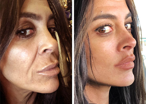 mini-facelift patient before and after