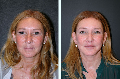 natural facelift result