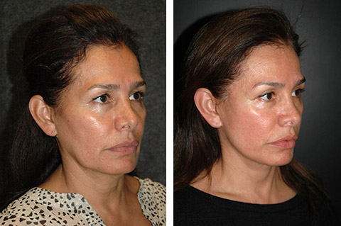 ponytail facelift before and after