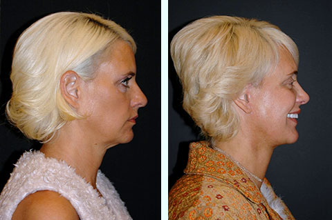 youngest age for facelift 40