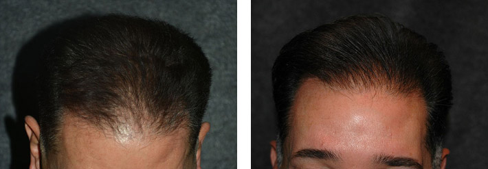 best hair transplant before and after photo