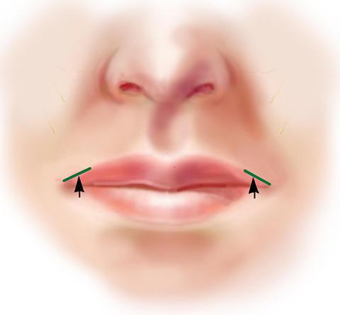 Corner Lip Lift