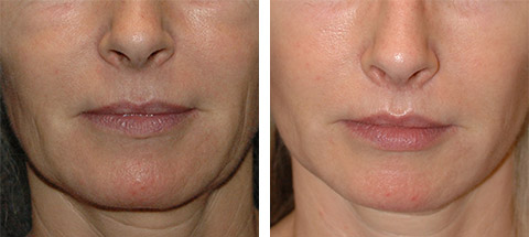 lip lift patient before and after photos