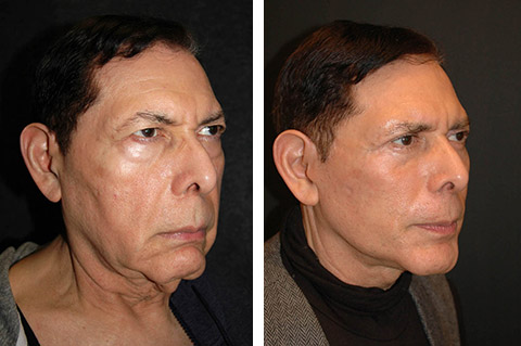 best male facelift before and after
