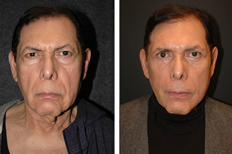 best male facelift surgeon nyc world