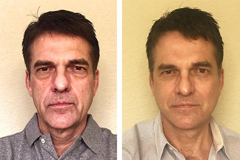 male facelift before and after