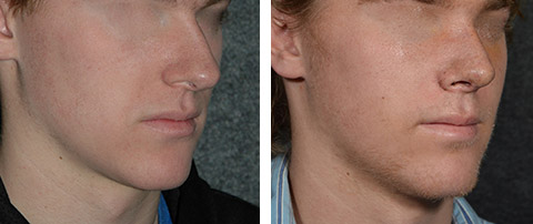 best male rhinoplasty before and after