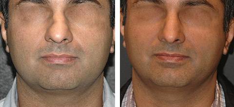 best male rhinoplasty surgeon nyc before and after