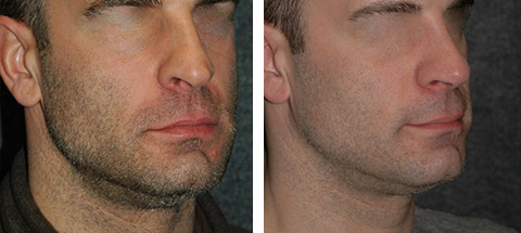 male rhinoplasty surgeon nyc before and after