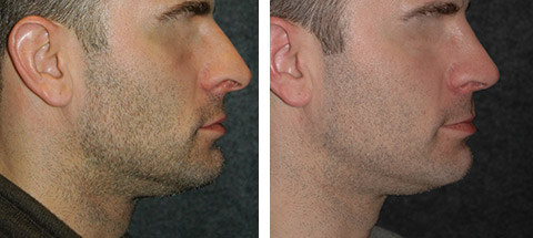 rhinoplasty for men before and after