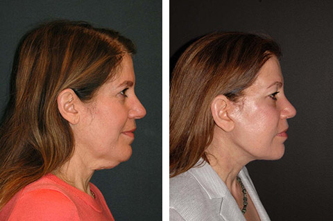 necklift before and after patient profile