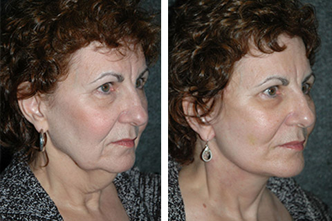 necklift before and after patient three-quarter