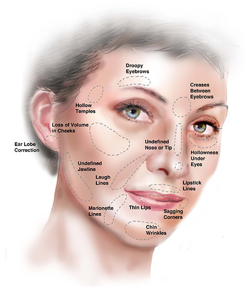 non-surgical face treatment areas