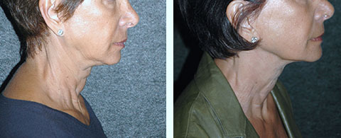 non-surgical facelift liquid facelift before and after