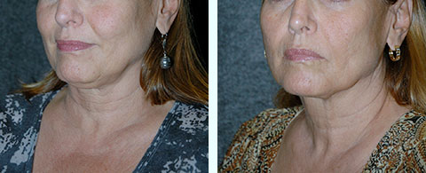 non-surgical facelift thermitight before and after