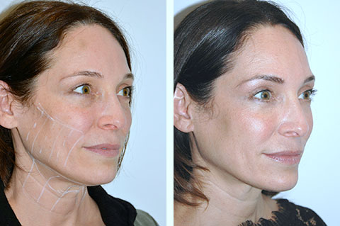 non-surgical facelift ultherapy before and afters