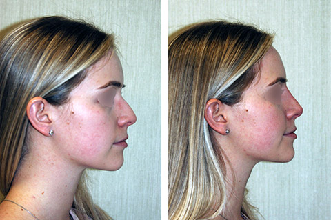 non surgical rhinoplasty patient before and after