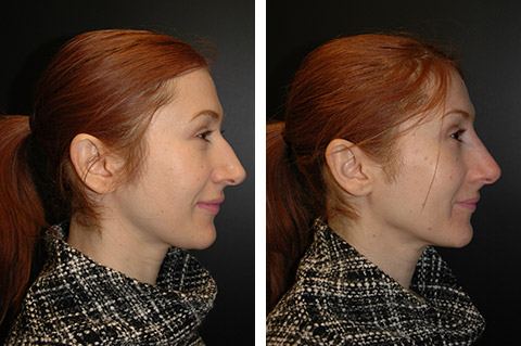 non surgical rhinoplasty photos nyc