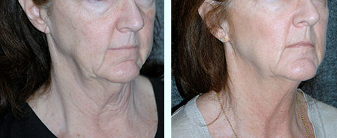 thermitight non-surgical facelift before and after