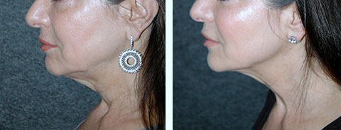 ultherapy before and afters