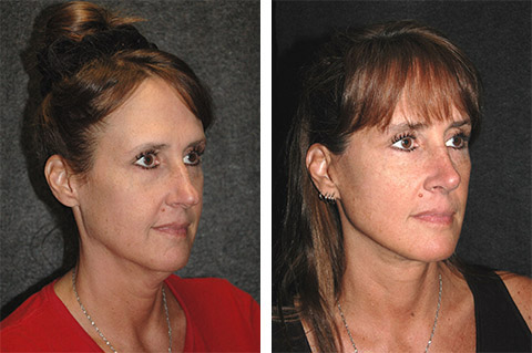 Ponytail Face Lift Before & After Patient Photo