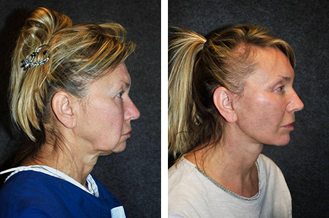 Ponytail Face Lift Before and After Patient Photo