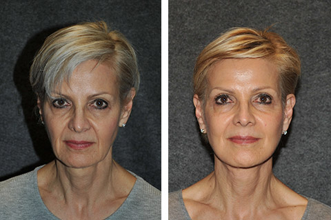 Ponytail Technique Face Lift Before and After Patient Photo