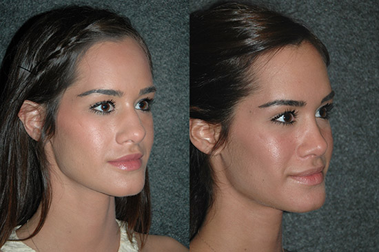 Medical Tourism Rhinoplasty Before and After