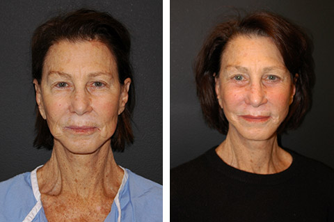 best revision facelift nyc