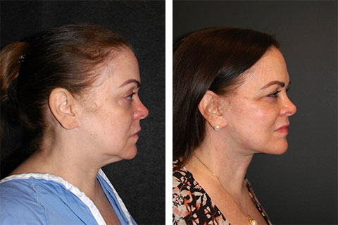 best revision facelift surgeon new york