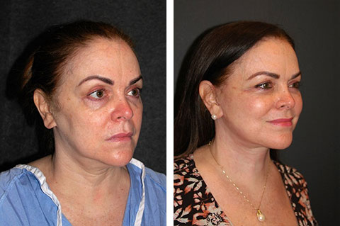 best revision facelift surgeon