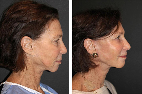 revision facelift new york