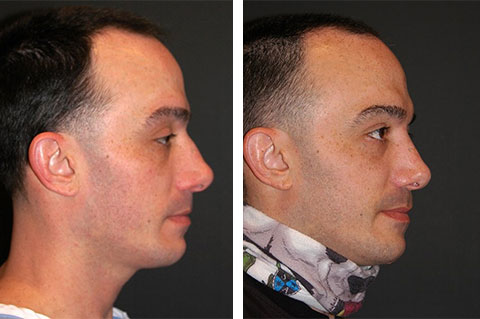 best male rhinoplasty befor after photos