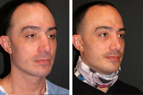 best male rhinoplasty surgeon