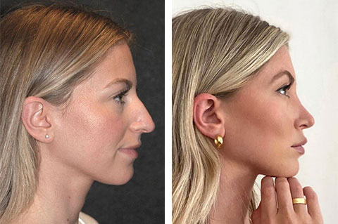 best rhinoplasty before after photos