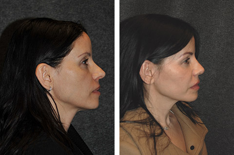 Closed Rhinoplasty Patient Before and After Photo